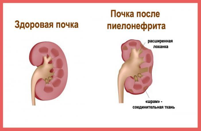 Rotoviiruse valus liigesed