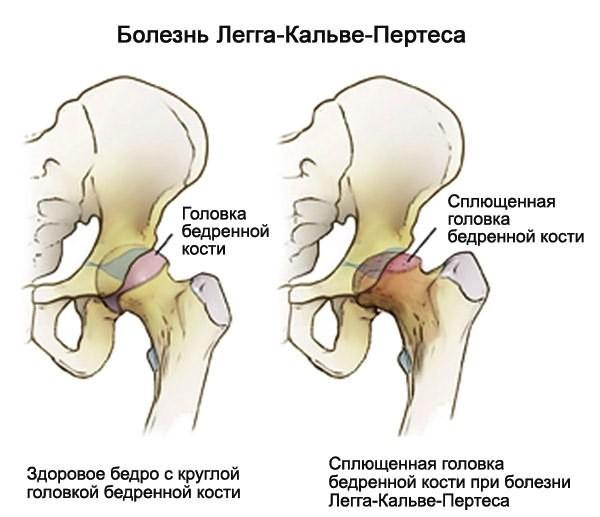 valus liigesed varases eas Kuunarnukkide liigeste valu ravimine