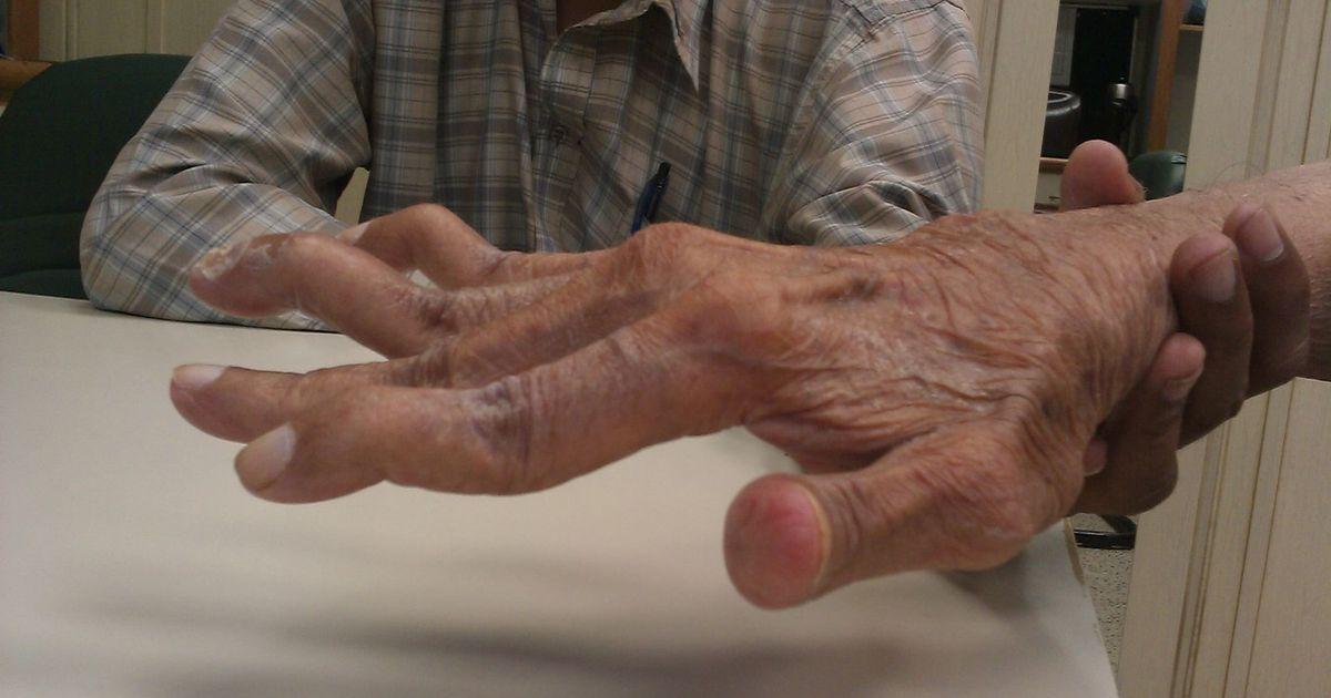 Artriidi ravi kuunarnukis Kasi valus kuunarnuki