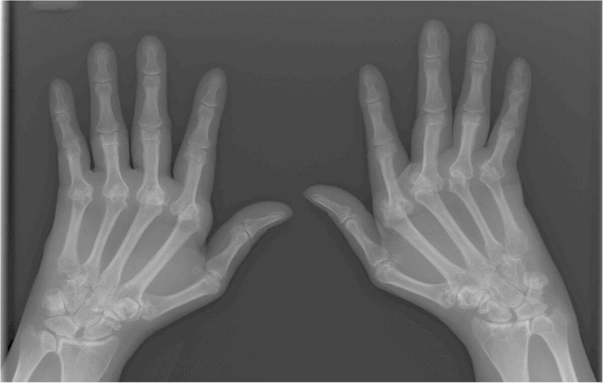 Reumatoida poluartriit leevendab valu liigeses
