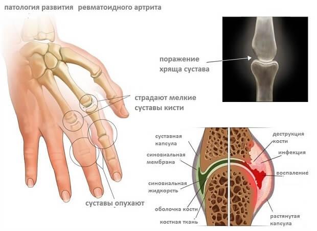 Valu liigeste pohjused