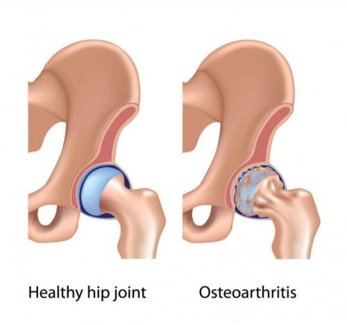 Liigeste artroos Ravi rahvameditsiin Artriidi jaam