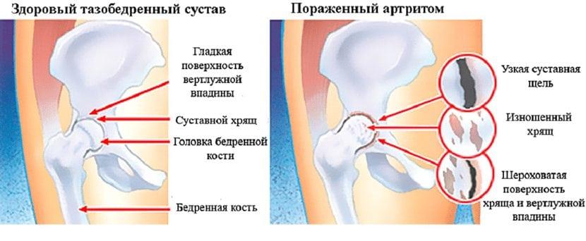 haiget liigesed peatuvad jooksmisest Olaliigese artriidi ennetamine