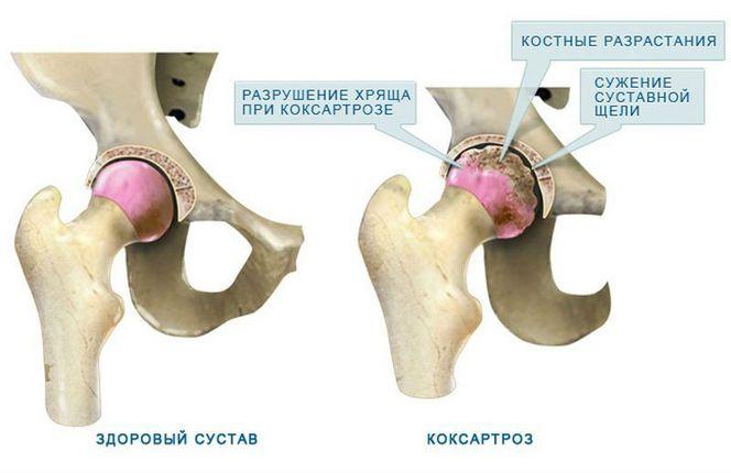Steroidide salvid ja liigesed