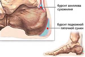 Tabletid lihaste ja uhiste poletik valutab jalgsi, mida teha