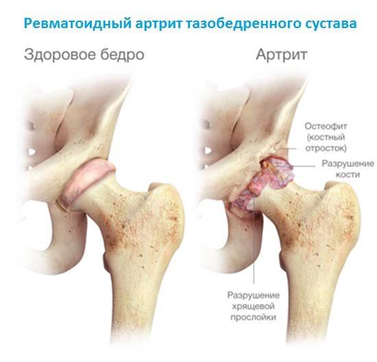 Artroosi ravis aitab mind Puha polve metisky