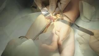 Stop liigeste poletik Parim vahend liigeste haiguste haiguste jaoks