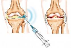 Mis salvid anesteesia liigeste Viigede hinnad valu