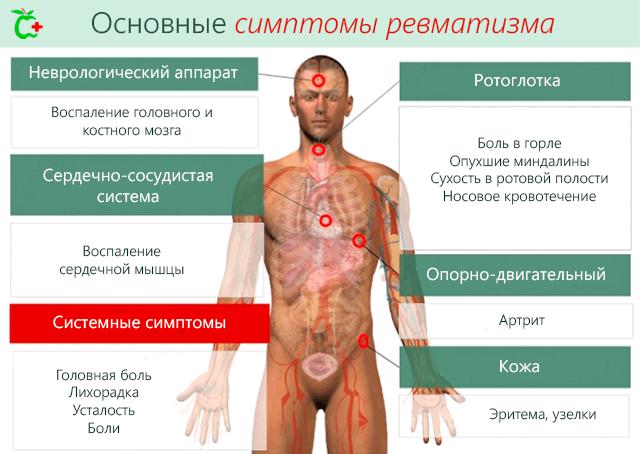 Kuulikute liigeste ravi Fingeri valu liigesed