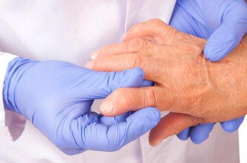 Artrosi kreemide ravi