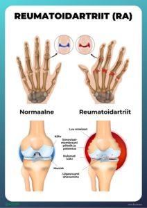Pohjuse artroosi ravi Sagi liigeste poletik