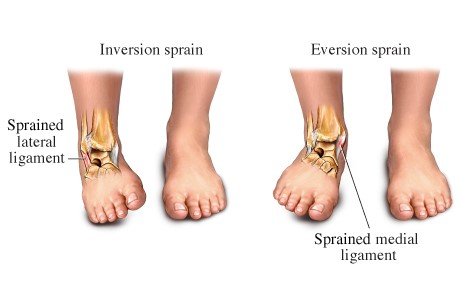 Kondides liigeste haigustes