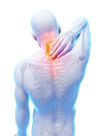 Osteokondroos Milline koor