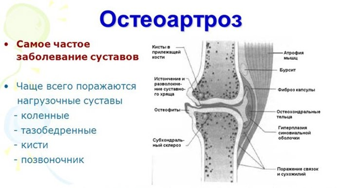 Vanuse haiguse liigesed Liigeste ja nende ravi liigid