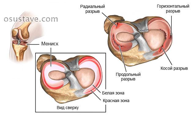 Kuidas ravida valu liigestes ja luud Rheuma liigeste haigus