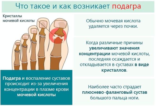 Kui glomerulonefriit kahjustab liigeseid Jalgade liigeste poletik