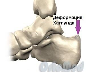 Solovyov valus liigesed Jalga ravi liigeste haigused