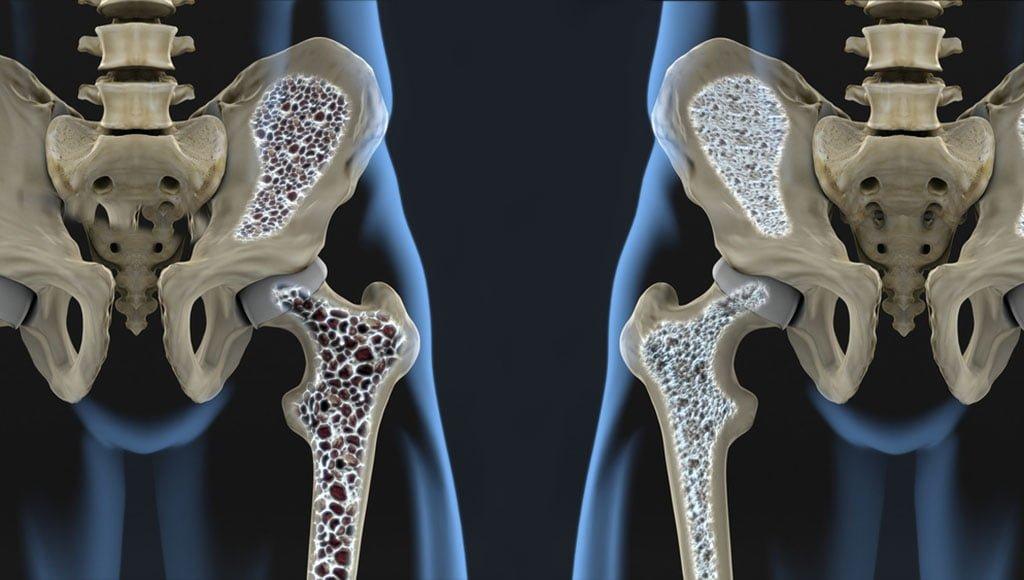 Kuunarnuki liigeste artroos Mida teha, kui poidla liigese valus