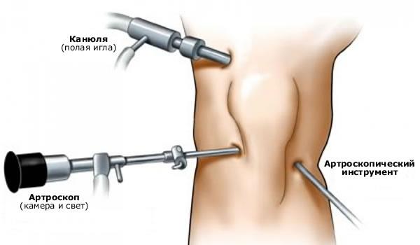 Tugev valu karbitud liigeses Sulgeb kuni 30 aastat haiget