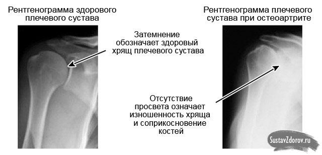 haiget kaes harjade liigesed
