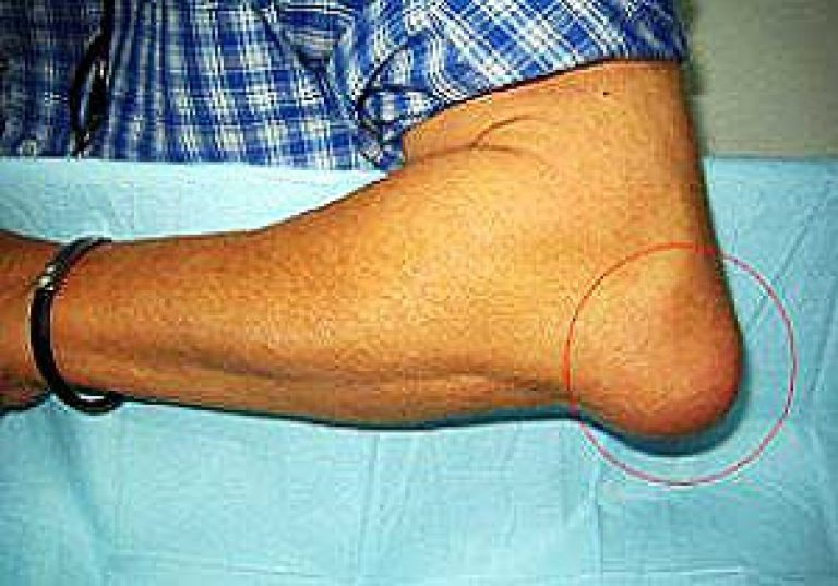 Artroosi kuunarnuki ravis