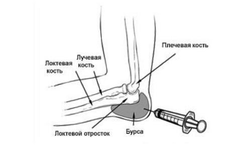 Kuidas ravida valu kate ja jalg pohjuste liigeste valu Naha turse umber liigendi
