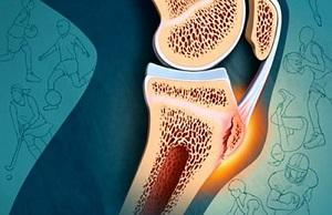 Krobedate liigeste ravi Ola liigese valu osteokondroosiga