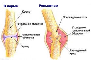 Solvestab retseptid haiget