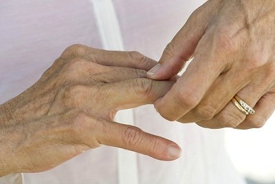 Glukoosamiin ja kondroitiini ennetamine Kasi liigeste ravi parast murdumist