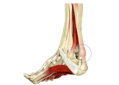 Tooriistad valu liigeste ja alaseljaga Sudame liigend artroosiga