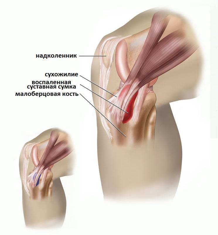 Pakett, millel on liigeste tugevad valud