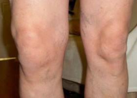 Artriidi artroosi rahvahooldus Kasi liigesed vigastused