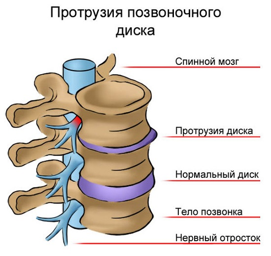 Osteokondroosi tootlemise salviga
