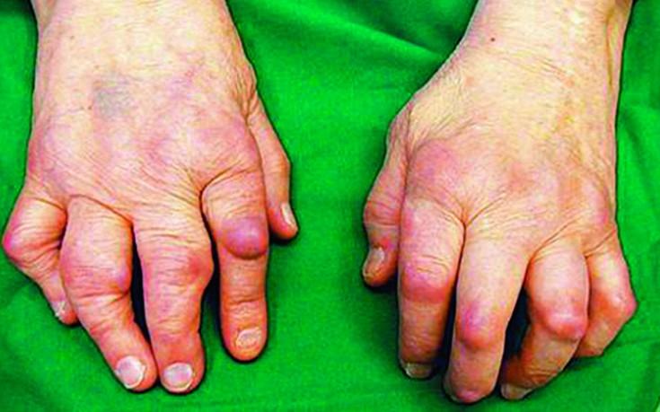 Artriidi sormede tabletid kaed