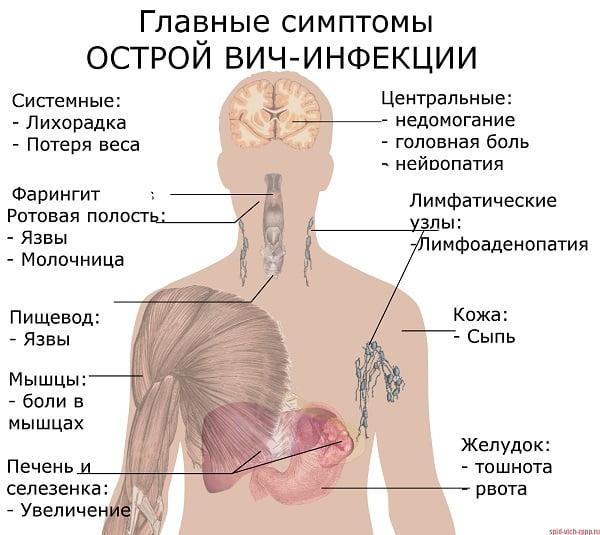 Uhiste haiguste tunnused varajases staadiumis Sustava narvi poletik
