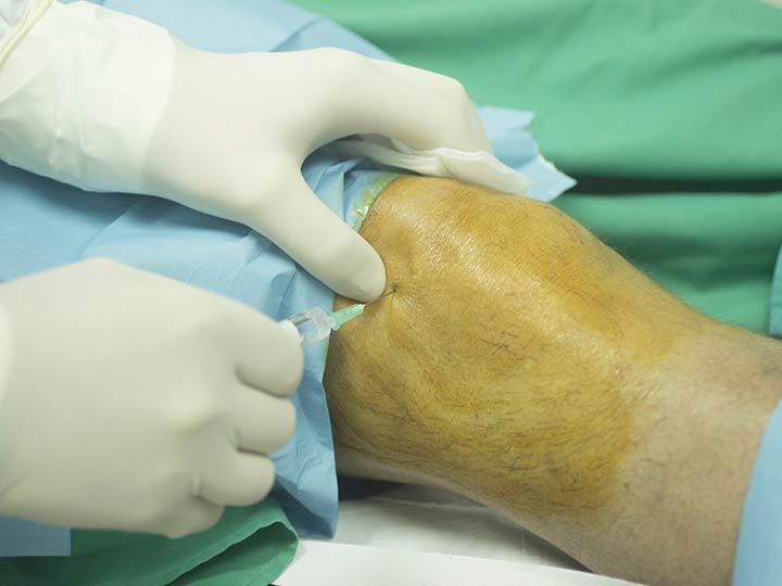 Preparaadid liigeste anesteesia jaoks