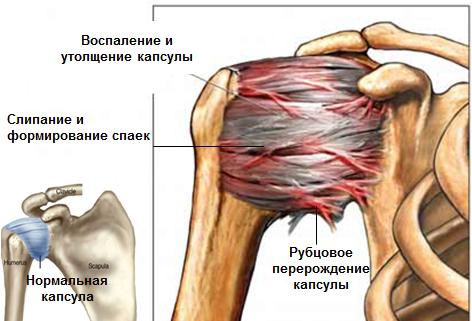 Valu ola liigese paremas kaes parast insulti Obninski liigeste ravi