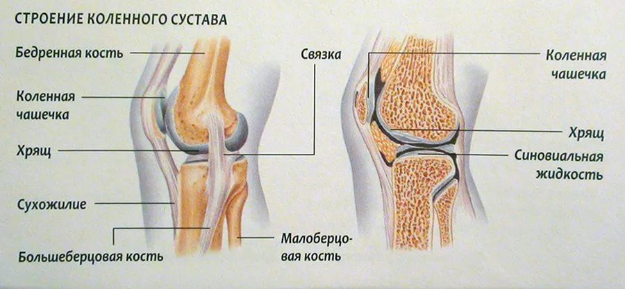 Artroosi raviks ravi