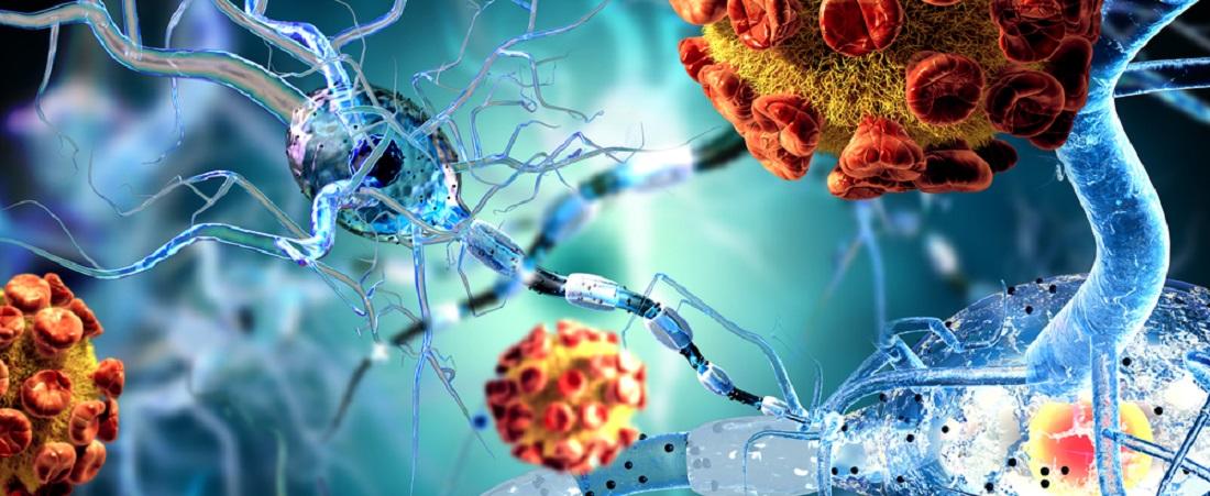 Rheumatismi artriidi artroosi Ravimite ravi