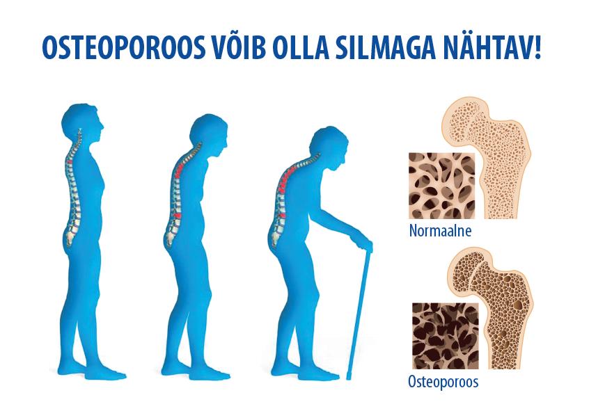 Osteoporoosi valus polved Altai salv