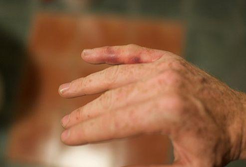 valu liigeses kahjustada kuivatamise liigeseid