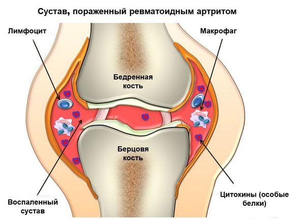 gastriidi valu liigestes
