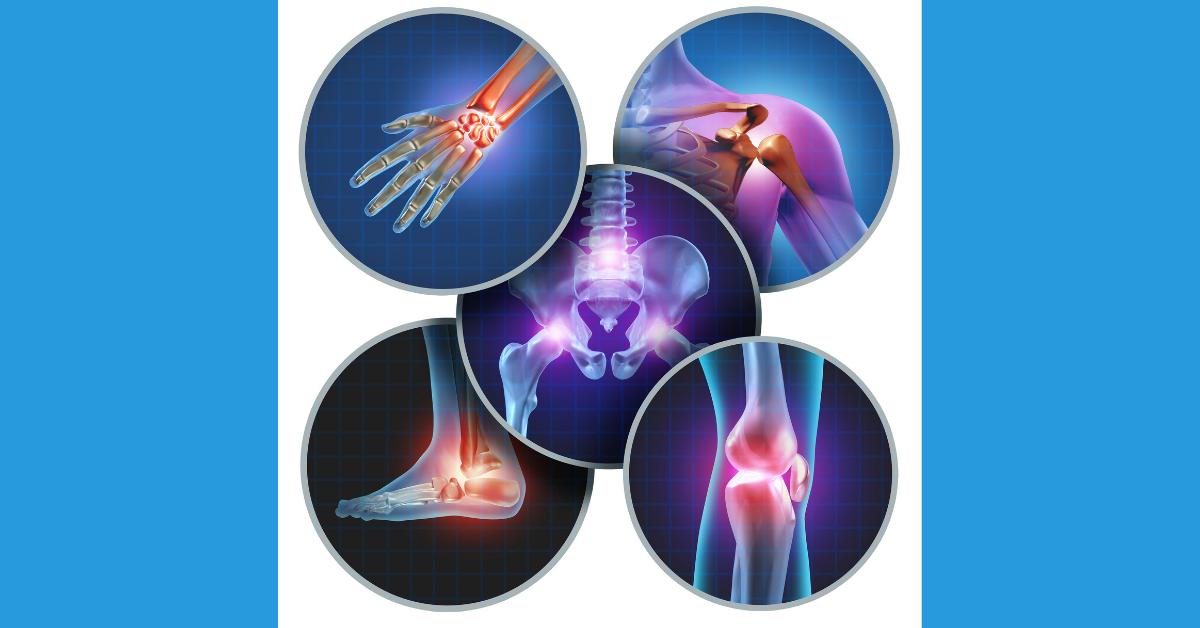 STD valu liigesed Kate artroosi pohjused