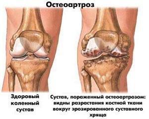 Arthrisa artriidi liigesed Bronhiit valud