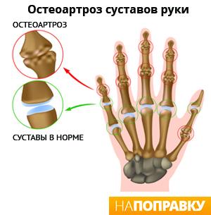 Oiged liigesed sormedel