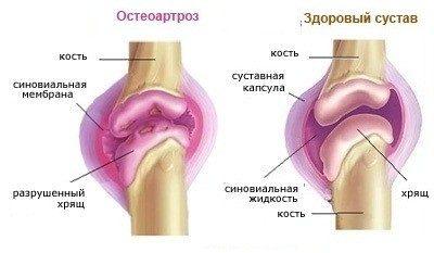 Kui liigesed valus sormede pohjus ja ravi vasimuse valulike liigestega