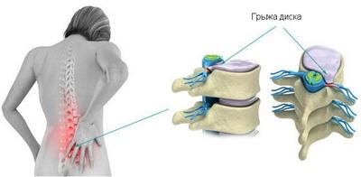 Nicoflex liigesevalu vastu Kreeka artriit kasi