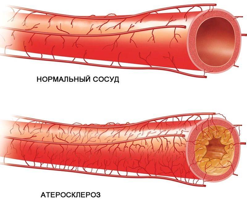 Artriidi artroos Milline erinev ravi Chondroitiini liigeste salv