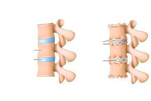 Sormede sissepaasud ja valu liigestes