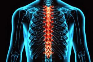 Tugev valu liigeste ravi Olaliigese diagonaalide vigastuse korral